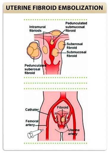 Uterine Artery Embolization procedure
