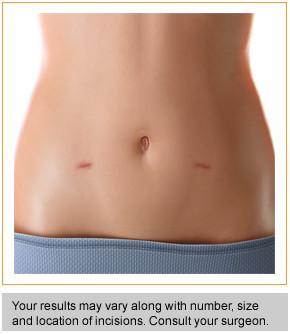Laparoscopic hysterectomy scars
